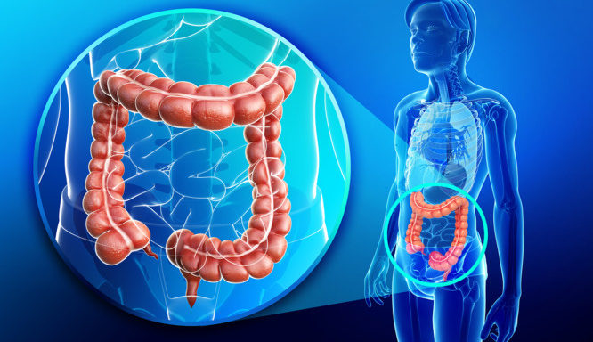 zp_48609_colon-colorectal-cancer-666x399.jpg
